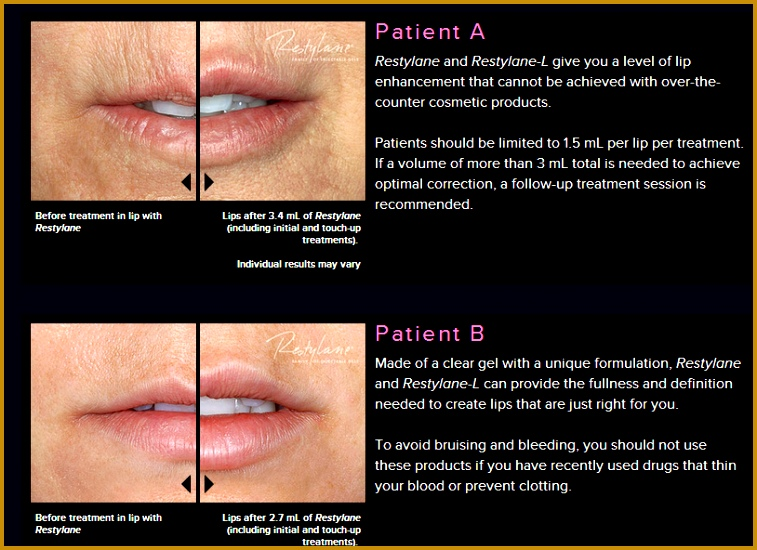 Cost of Restylane 550757